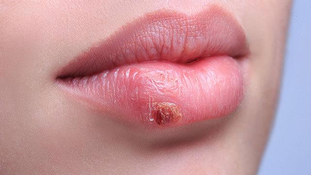hpv és herpesz tünetei