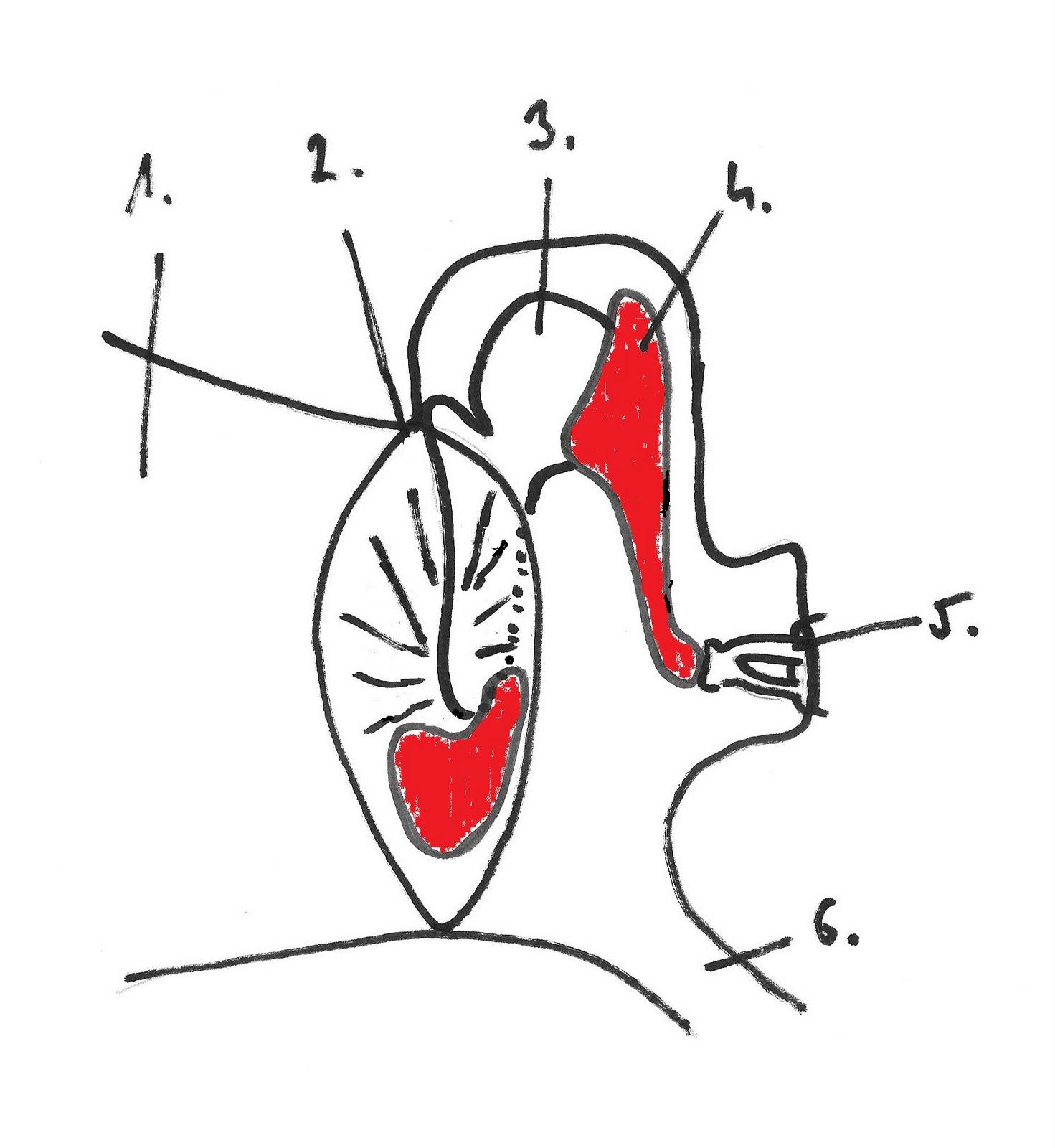 a preauricularis papilloma azt jelenti
