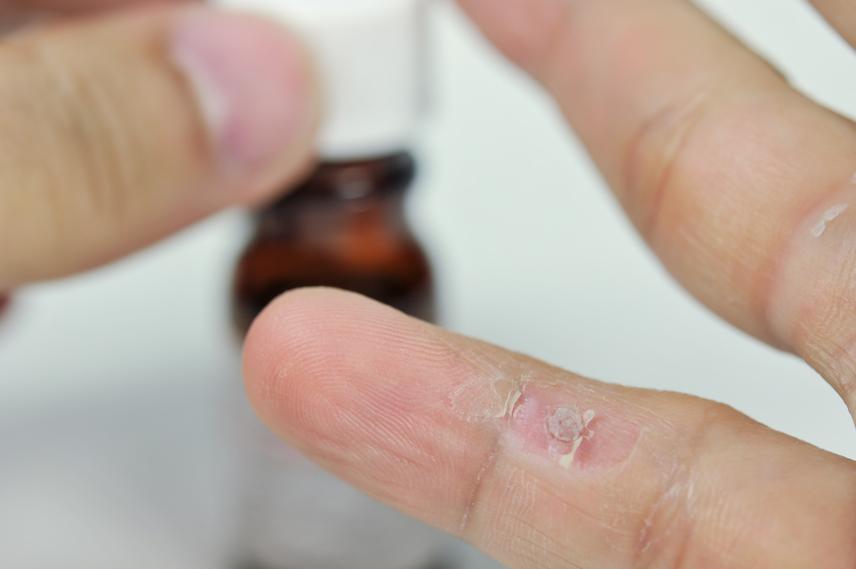 szemölcsök a kézen természetes gyógymód