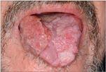 condyloma hpv száj