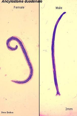pinworm morfológia