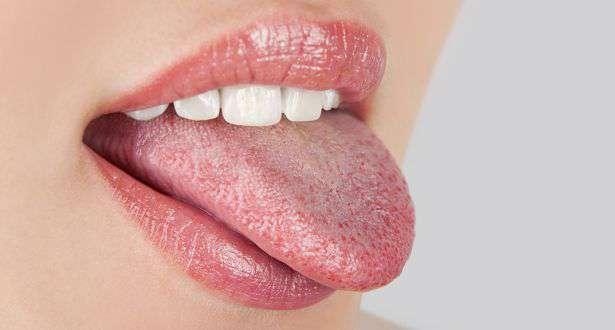 hpv a nyelv kezelésén