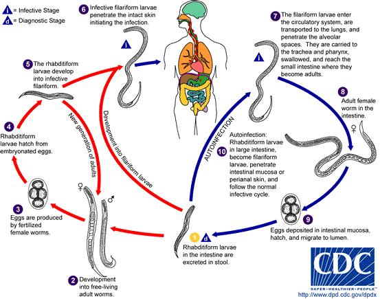 Férgek gyermekek: tünetek, kezelés Fascioliasis fertőzés módszer
