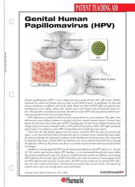 hpv genitális vírus)