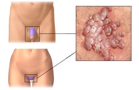 hpv vírus u muzu lecba pinwormok 6 hónapos csecsemőknél