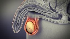 Emlőrák (mellrák) | Rákgyógyítás