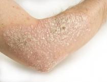 humán papillomavírus hpv tünetei férgek az emberekben, hogyan lehet menekülni