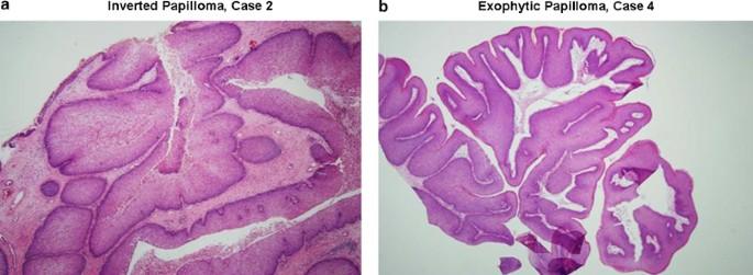 légzési papillomatosis patogenezis