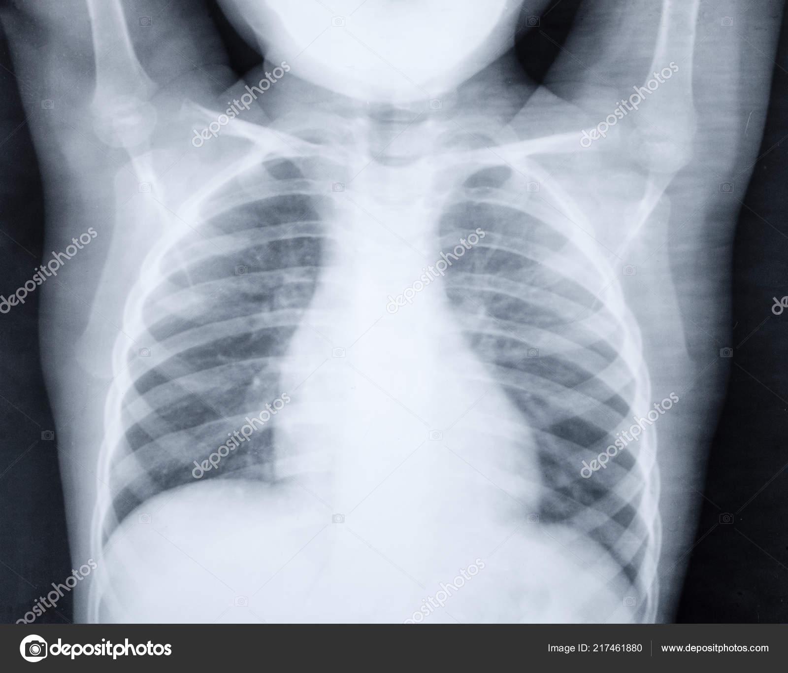 schistosomiasis mellkas röntgen