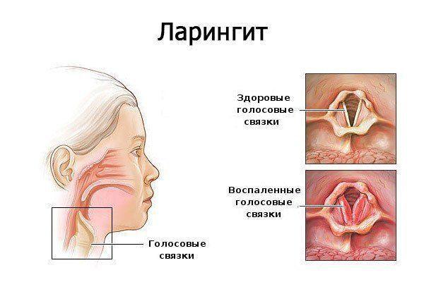 Pinworm fáradtság - Miért nem gyógyítják meg a Trichomonas-t