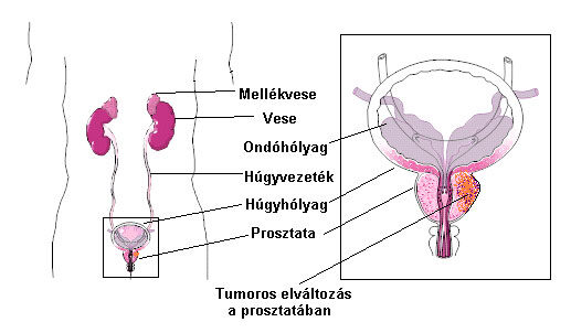 belső tisztító féreg fonálféreg tünetei