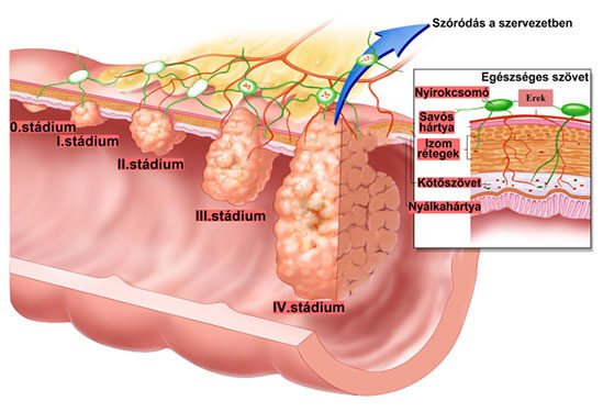 A vastagbél anatómiája | setalo.hu
