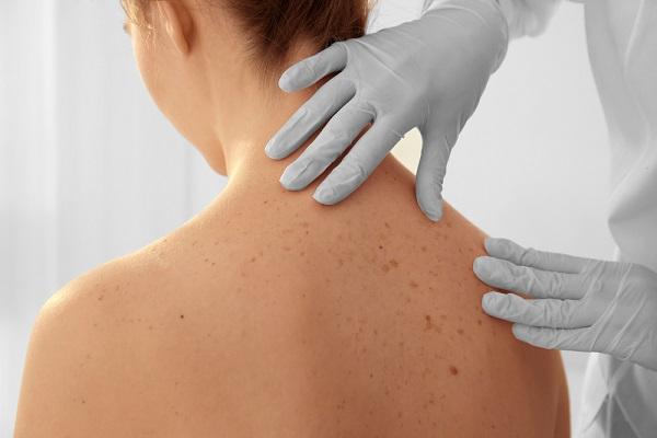 stádiumú bőrrák papilloma vírus vakcina káros hatásai