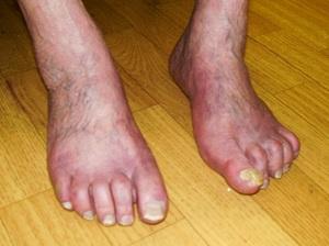 hogyan kell kezelni a lábujjak közötti lábfekélyeket