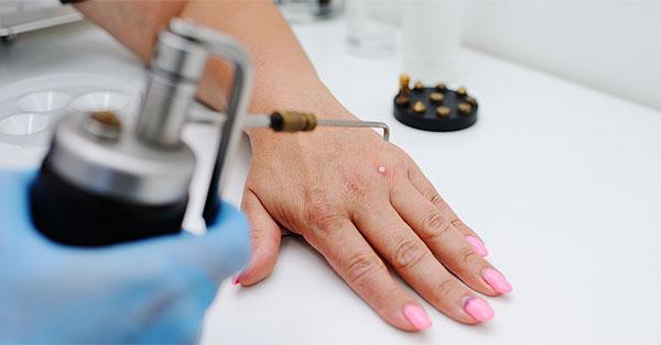 Minden, amit az anyajegy és szemölcs műtétekről tudni lehet (x) - Sajtóközlemények - news4business