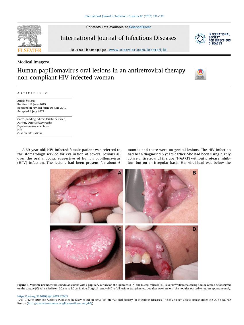 humán papillomavírus és HIV
