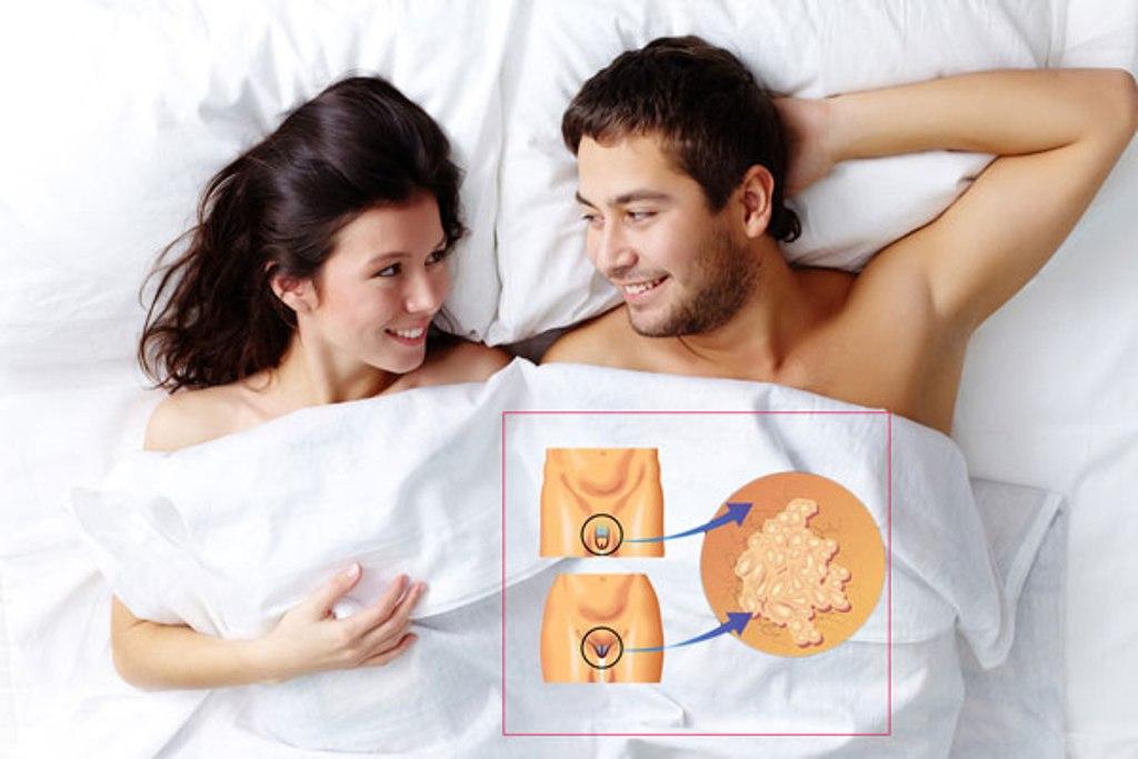 papillómák az ágyék területén kell elvégezni