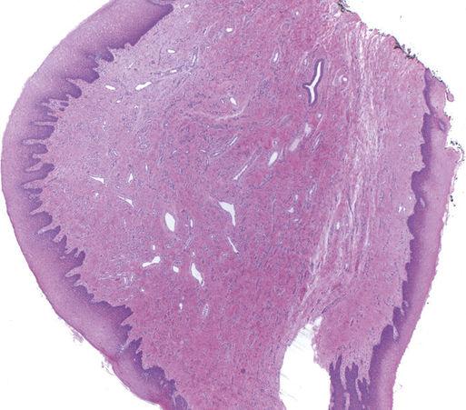 hagyma kezelése nemi szemölcsöknél hpv tedavisi yorumlar