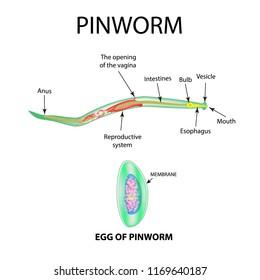 elhalt pinwormok