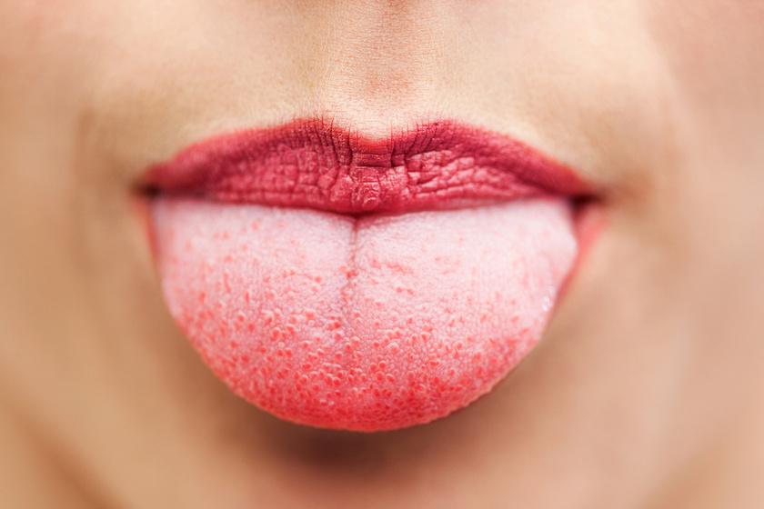 papilloma a nyelv hegyén