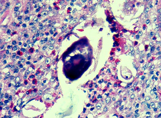 Schistosomiasis (vérmétely fertőzés)