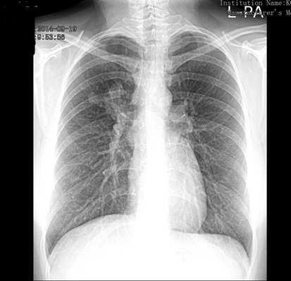 hpv pozitív tüdőrák)