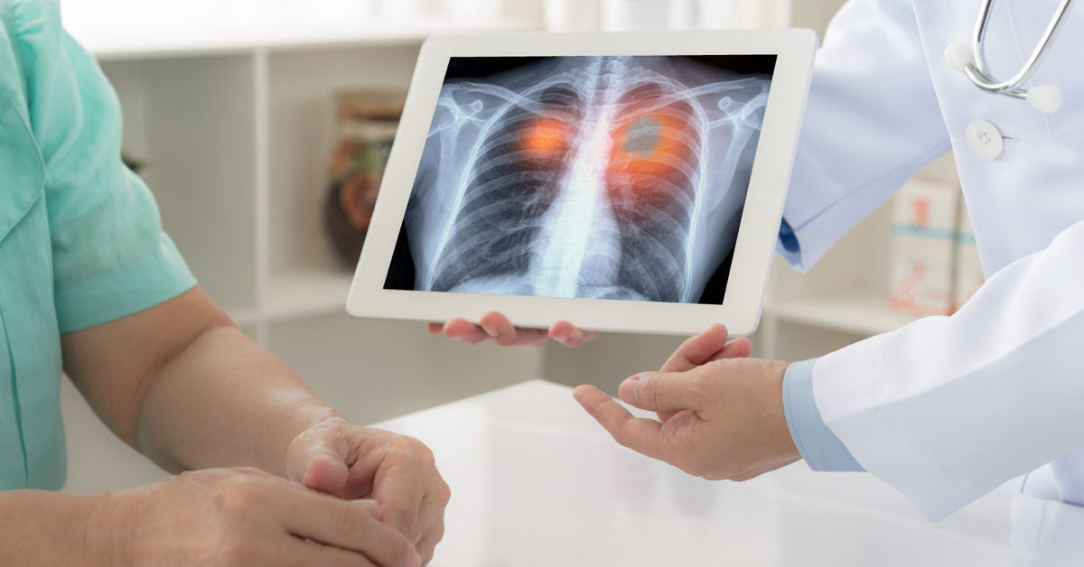 Tüdőrákos protonterápia - ProCure protonterápia