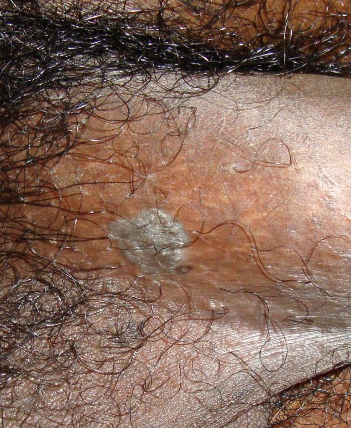 a pénisz condyloma