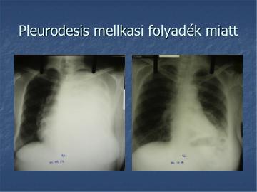 tüdőrák jóindulatú pleurális folyadékgyülem)