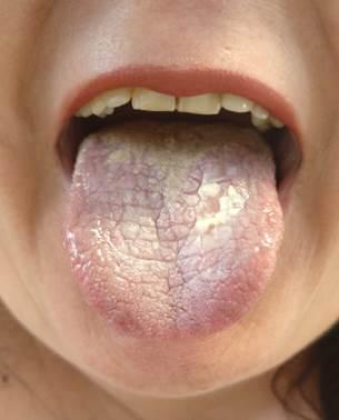 pikkelyes papilloma nyelv patológiája
