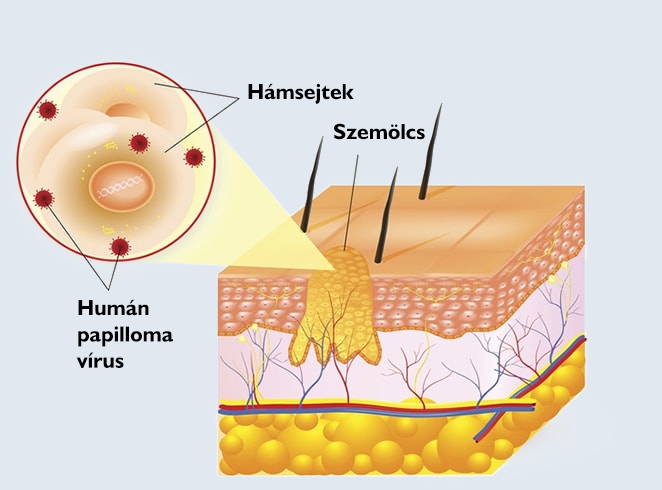 gége papilloma orvosi kifejezés