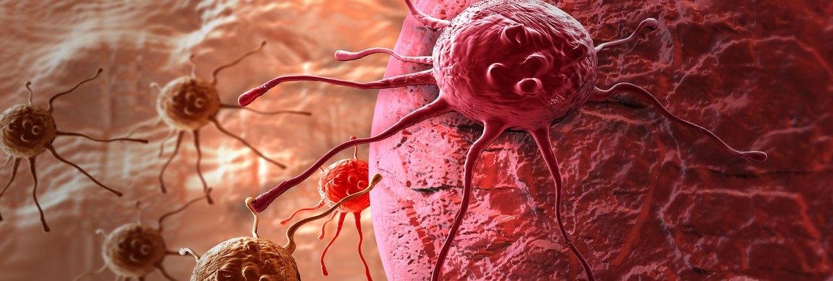 agresszív rák a bélben