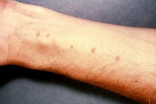 schistosomiasis bali