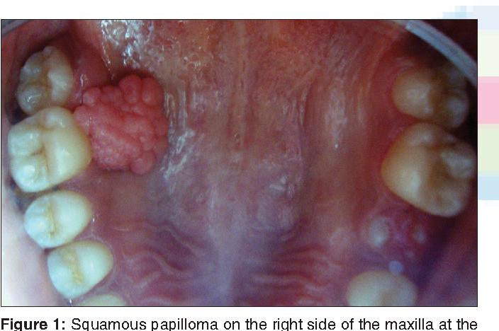 hpv impfung cervarix örökletes családi rák