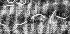 Krónikus enterobiosis felnőtteknél. hatásos pinworm tabletta felnőttekben