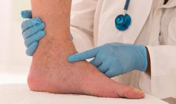 Trofikus fekélyek a lábujjakon a cukorbetegségben