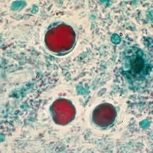 a blastocystis hominis parazitái