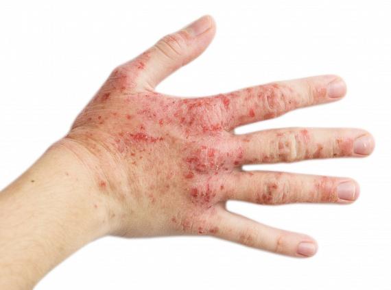 milyen betegség okozza a gyűrűs embert)
