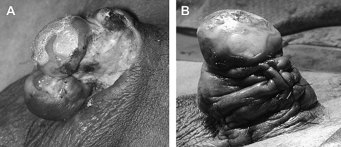 nagy condyloma az ajkán szemölcs lábujjak kezelése