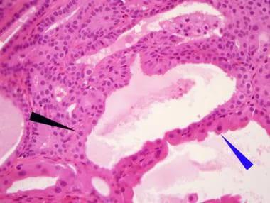 intraductalis papilloma kezelés emedicin)