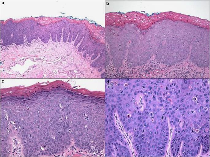 intraductalis papilloma epithelialis hyperplasiaval