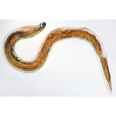horogféreg parazitológia