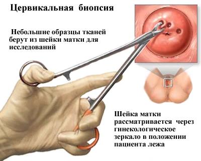 emberi papilloma vírus vezet)
