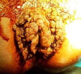 nagy condyloma az ajkán a hpv petefészek-cisztákat okoz