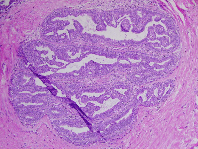 A papilloma a rákban)