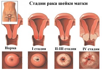 a hpv által okozott méhnyálkahártya-rák)