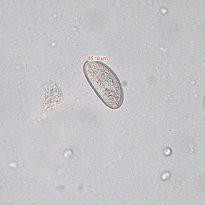 oxyuris vermicularis terápia)