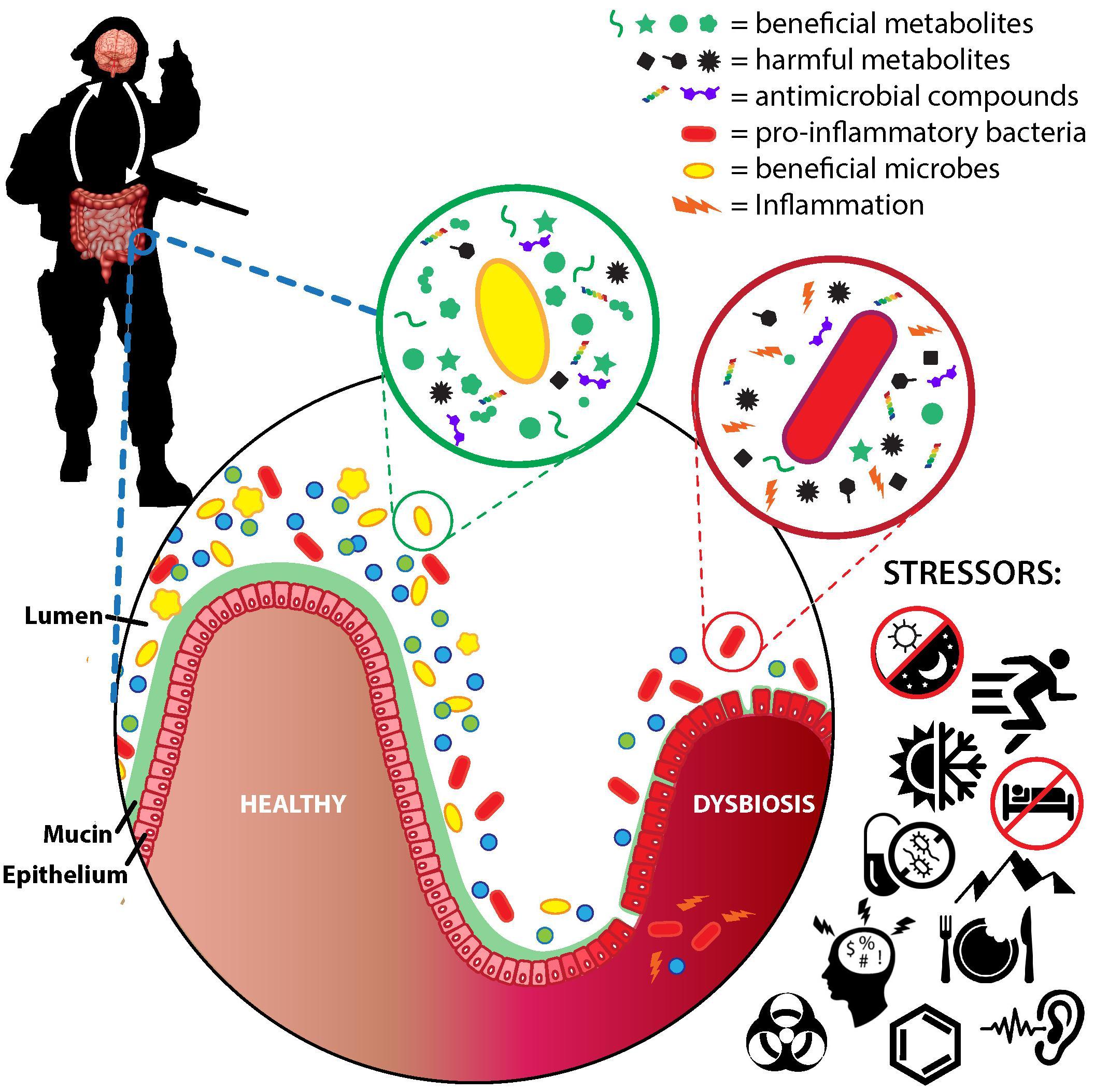 dysbiosis hogyan kell mondani paraziták a testben kezelésként