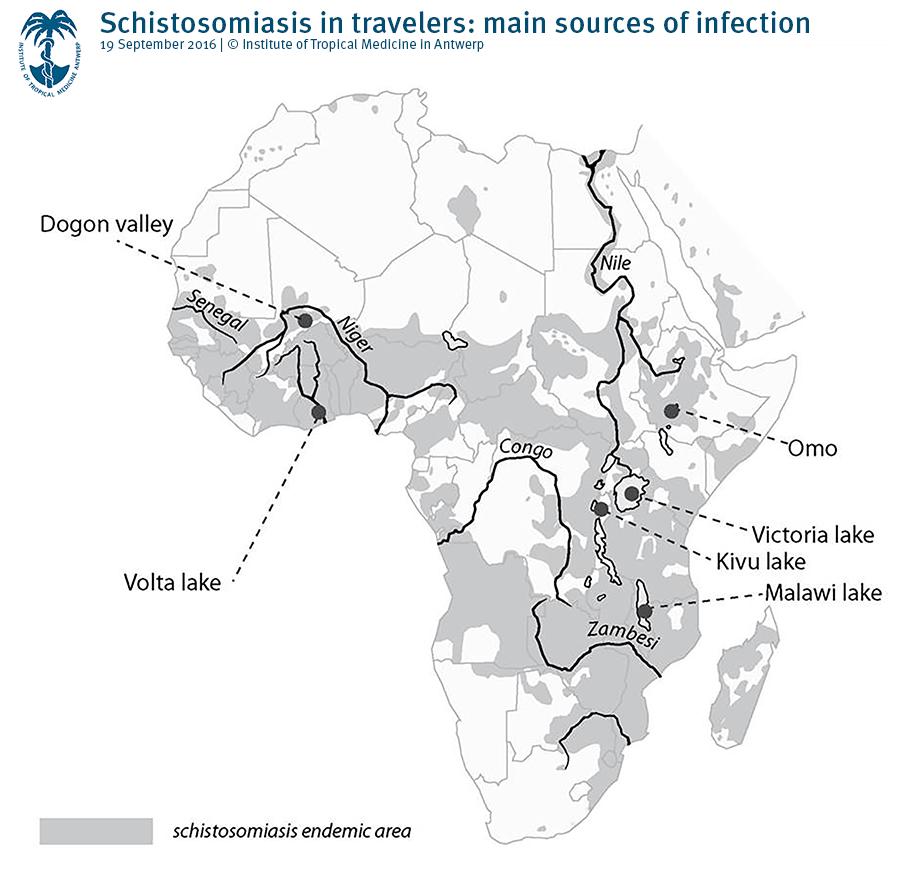 Jamaicai schistosomiasis