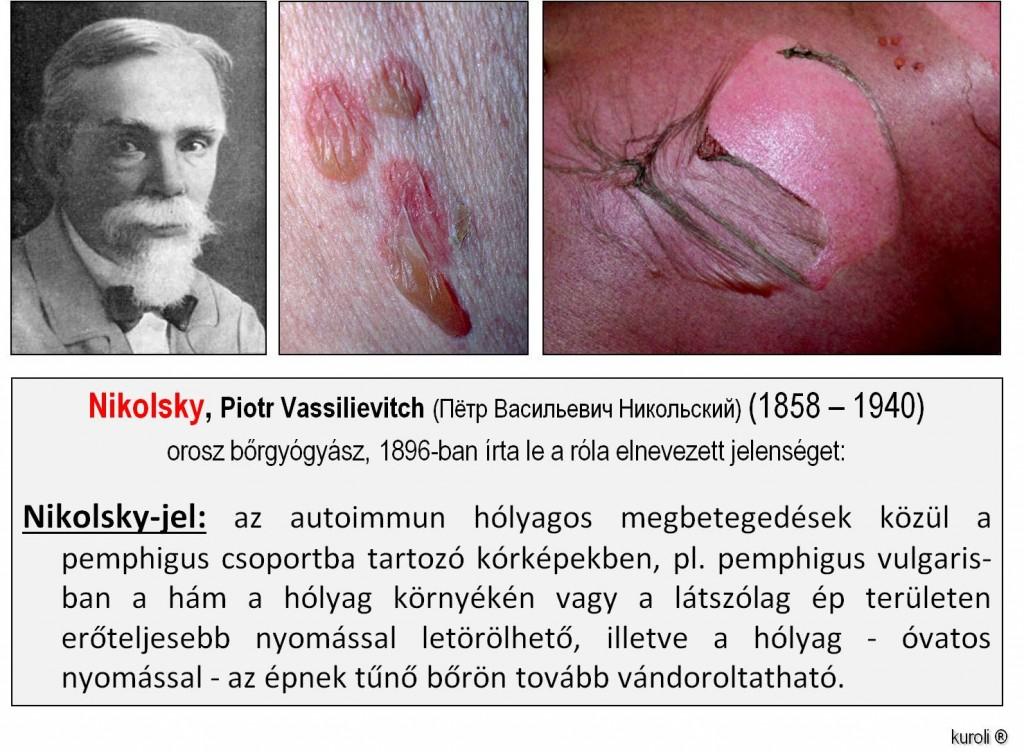papillomatosis a bőrön)